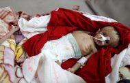 Kabar Internasional – Perang di Yaman Menjadi Neraka Bagi Anak-Anak